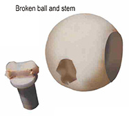 Broken ball and stem